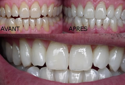 Exemple de résultat de blanchiment des dents par Laser