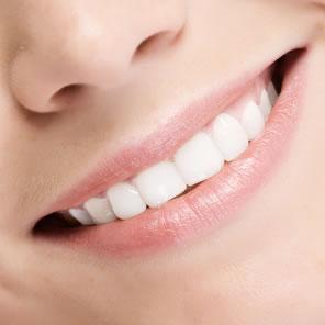 Sourire blanchiment des dents par laser