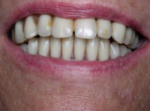 Cas d'implant : avant