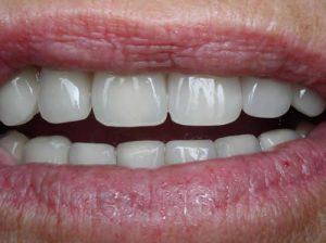 Implant : résultat final