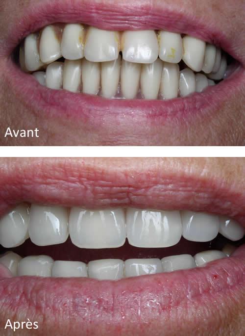 Cas d'implantologie : avant - après